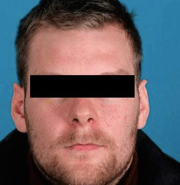 Ontsnapte IJslander gepakt in Amsterdam
